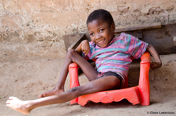 Children with Disabilities: the State of the World's ...