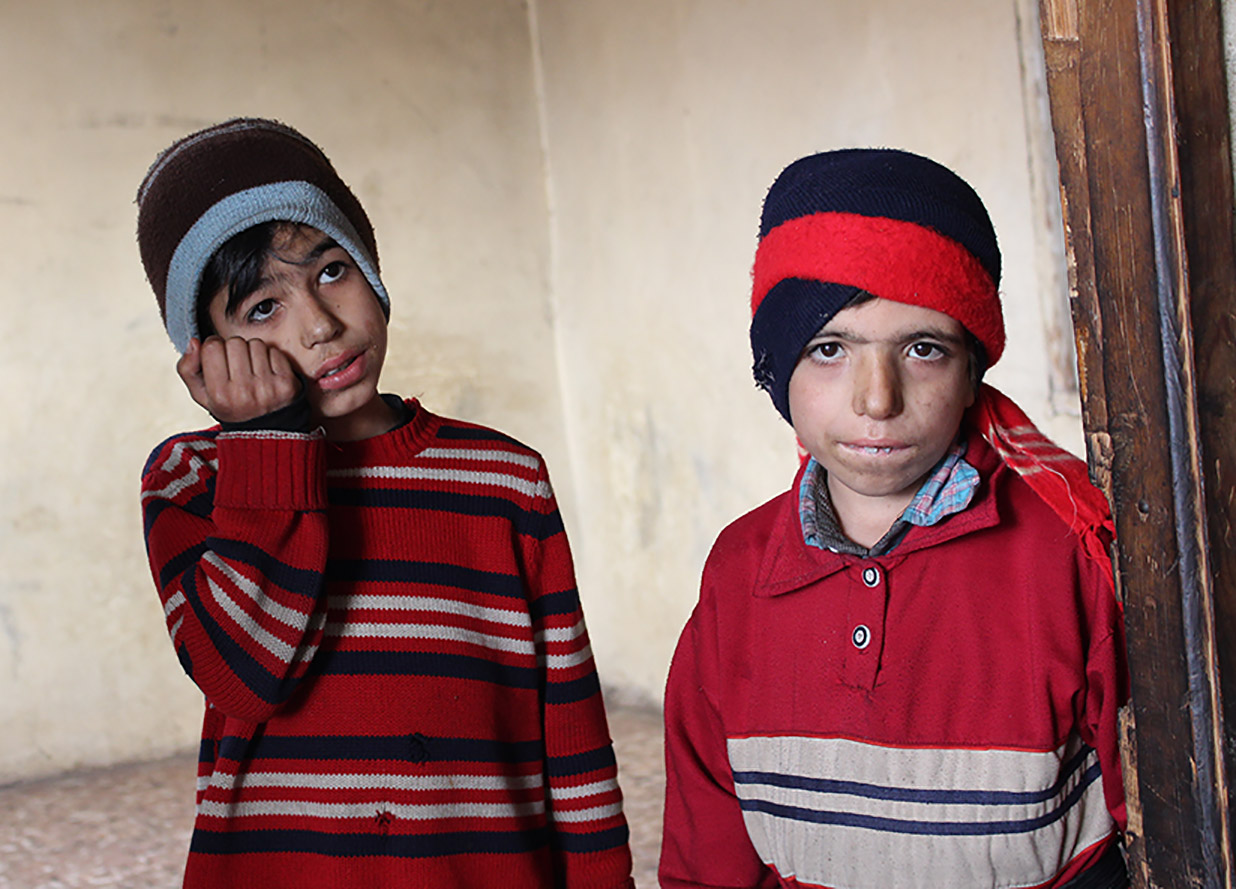 Two malnourished boys in Madaya